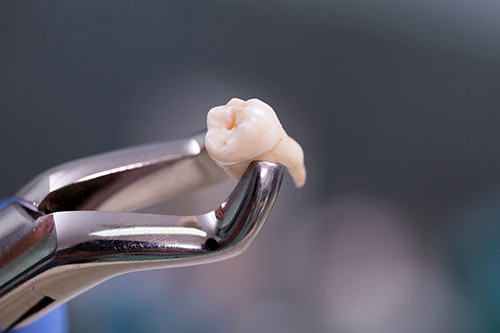 Oral Surgery and Tooth Extractions